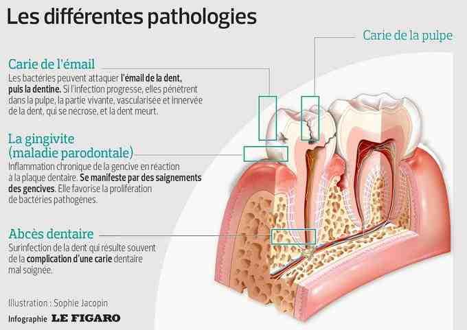 Quels antibiotiques pour l'anesthésie clé?