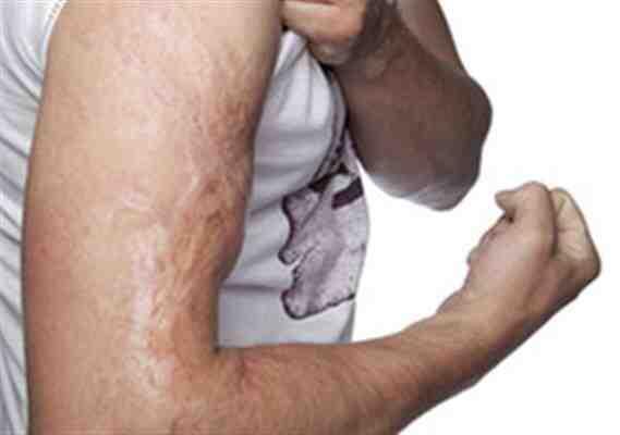 Comment accélérer la cicatrisation des plaies?