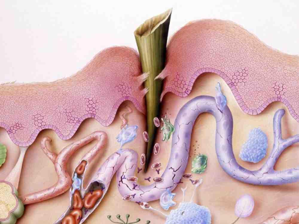 Comment éliminer l'inflammation dans le corps?