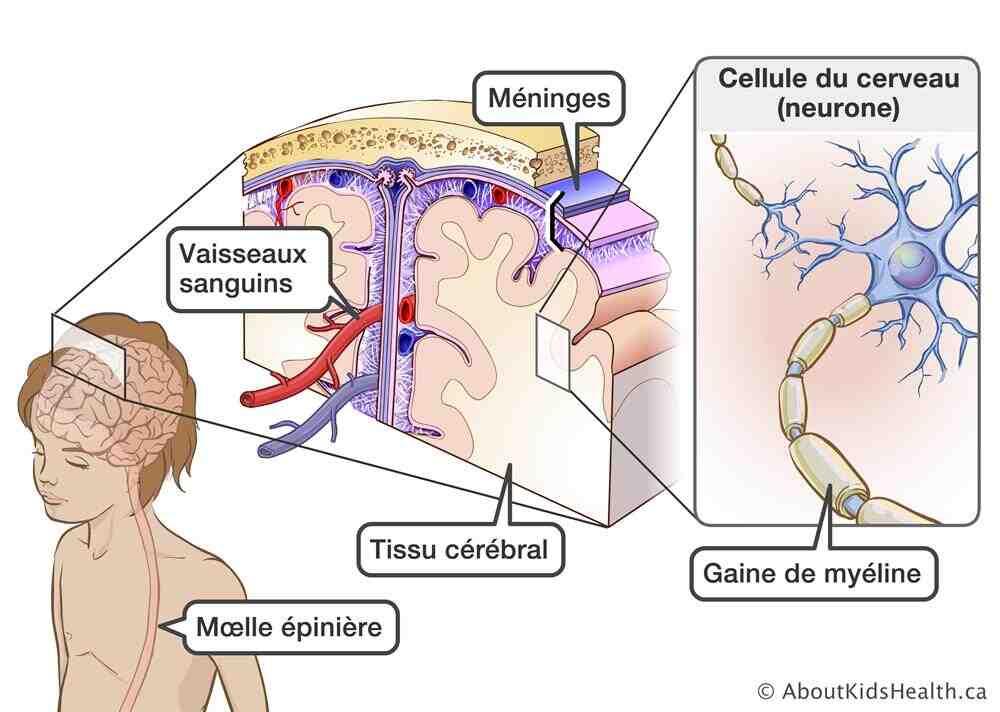 Comment enlever l'inflammation dans le corps ?