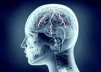 Comment soigner une inflammation du cerveau ?