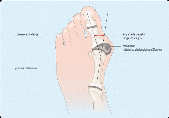 Comment soulager une inflammation du pied ?