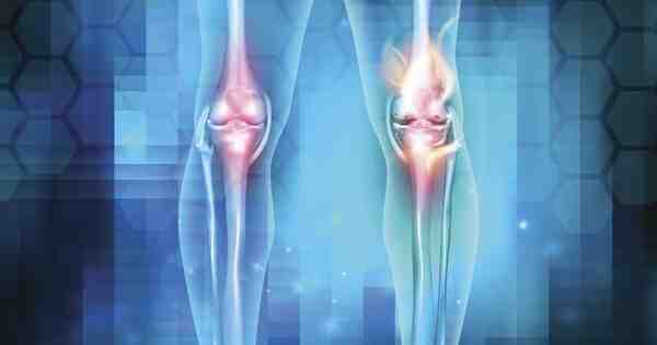 Qu'est-ce qui provoque une inflammation ?